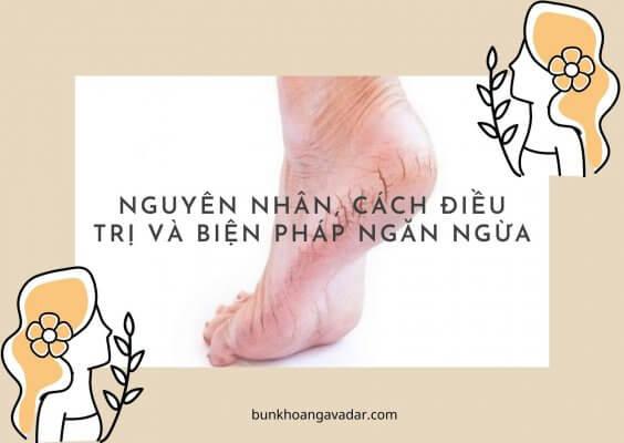 Nguyên nhân, cách điều trị và biện pháp ngăn ngừa Nứt gót chân